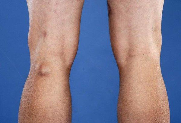 Изображение - Киста бейкера синовит коленного сустава kista-bejkera-kolennogo-sustava-razryv-kisty