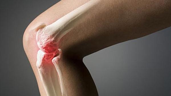 Изображение - Капсула сустава колена koleno-1