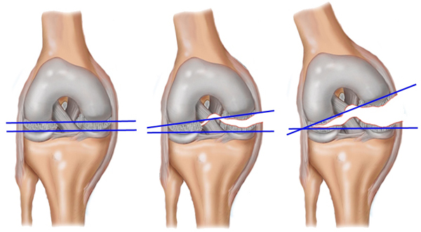 Три стадии разрыва связок колена