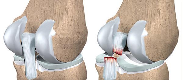 Болит колено при сгибании - разрыв связок