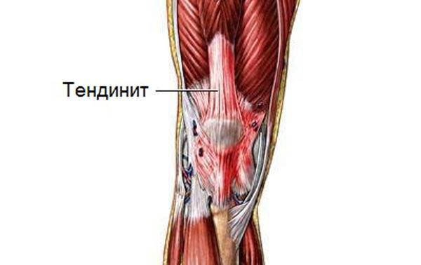 Почему болят колени - тендинит