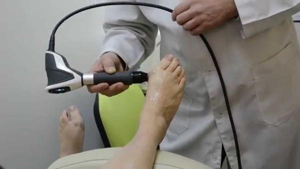 Лечение косточек на ногах методом УВТ