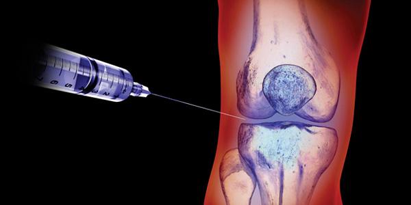 Изображение - Гормональная блокада коленного сустава ферматрон противопоказания ukol-v-sustav