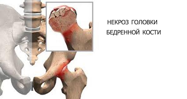 Изображение - Как вылечить некроз сустава asepticheskij-nekroz-golovki-bedrennoj-kosti