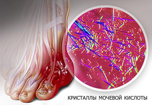 Что такое подагра - кристаллы мочевой кислоты