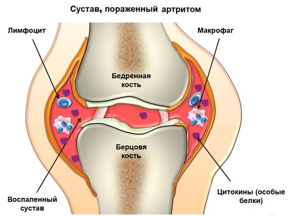 Развитие полиартрита