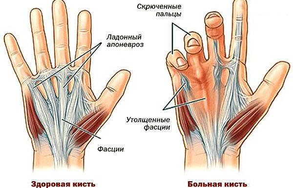 Деформация руки при контрактуре дюпюитрена