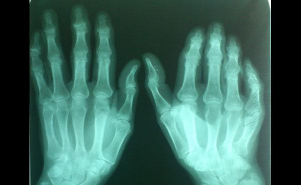 Контрактура дюпюитрена рентген