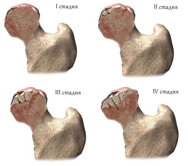 Изображение - Как вылечить некроз сустава nekroz-tazobedrennogo-sustava-stadii
