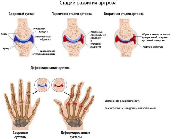 Стадии артроза кистей рук