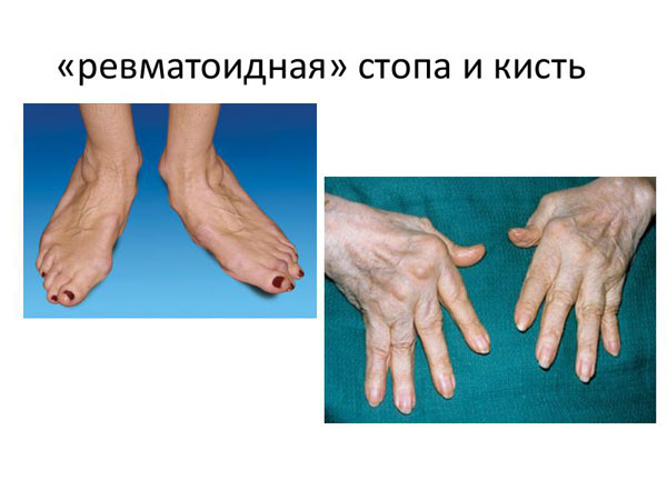 Деформации при ревматоидном полиартрите