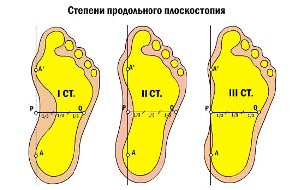 Три степени плоскостопия