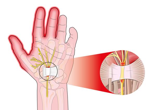 Строение сухожилия руки