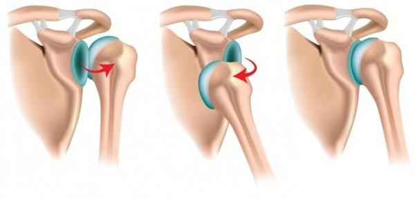 Места расположения выскользнувшей головки плеча