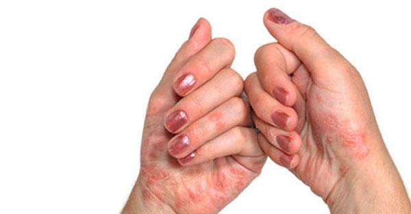 Изображение - Артрит суставов диагностика artrit-simptomy