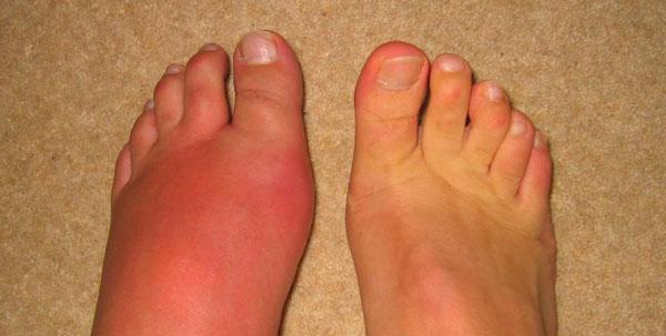 Подагрический артрит симптомы