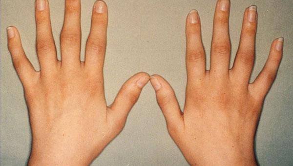 Симптомы артрита - воспаление суставных сумок