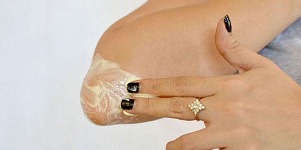 Лечение ревматоидного артрита мазями