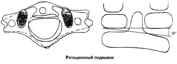 Ротационный подвывих шейного позвонка