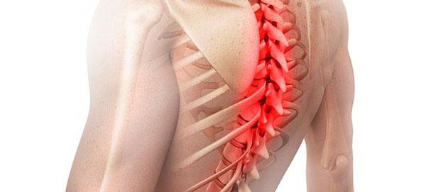 Cпондилоартроз грудного отдела позвоночника симптомы и лечение
