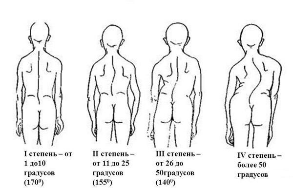 Степени тяжести сколиоза у детей