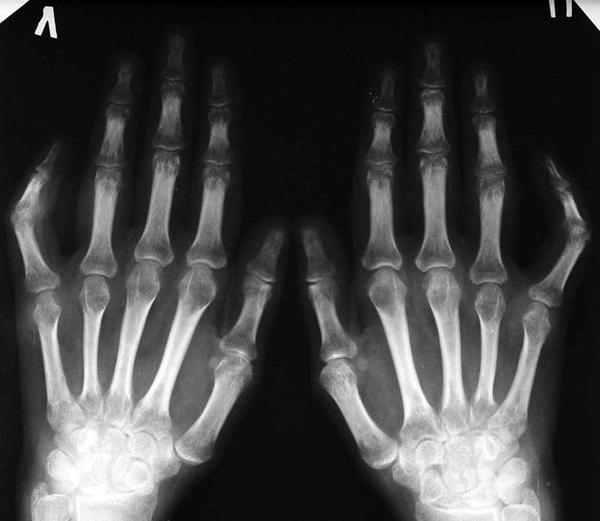 Рентген для диагностики ревматоидного артрита