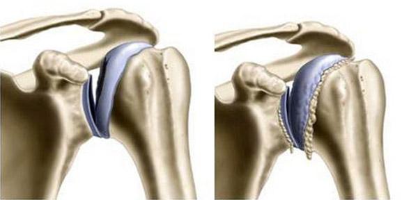 Приступ поясничного остеохондроза что делать первая помощь