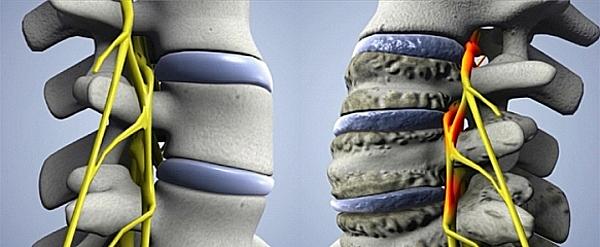 Восстановление хрящевой ткани при остеохондрозе