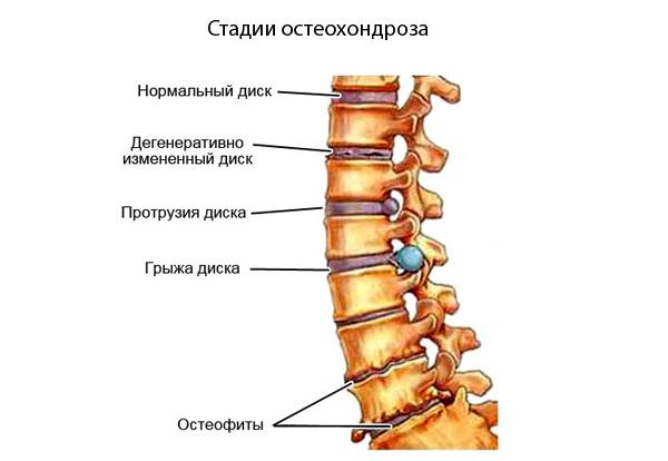 Стадии остеохондроза поясничного отдела позвоночника