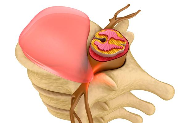 mozhno-li-delat-massazh-pri-shejnom-osteohondroze