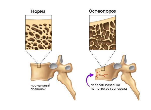 Перелом позвоночника при остеопорозе