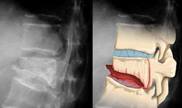 Компрессионный перелом позвоночника рентген