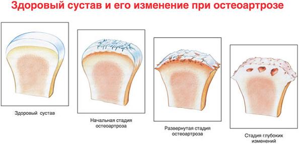 Изображение - Артроз 1 степени лучезапястного сустава лечение artroz-luchezapyastnogo-sustava-2-stepeni