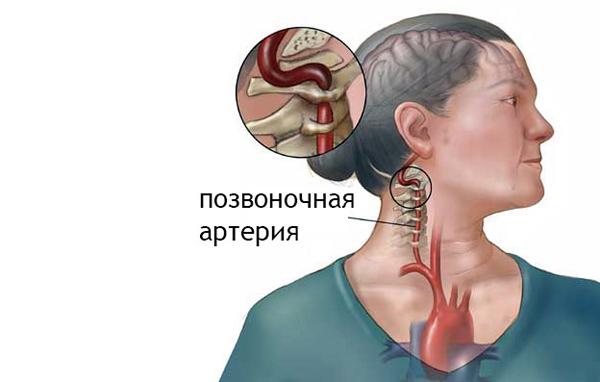 Дорсопатия ШОП приводит к зажиму артерии
