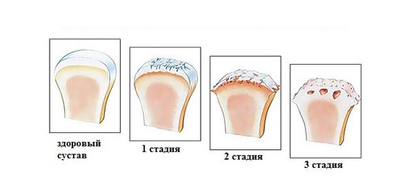 Желатин на первой стадии артроза