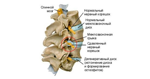 Онемение ног из-за компрессии нервных корешков позвоночника