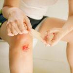 Ушиб колена: что делать если колено опухло?
