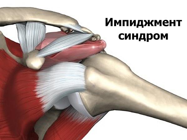 Изображение - Импиджмент левого плечевого сустава impidzhment-sindrom-levogo-plechevogo-sustava