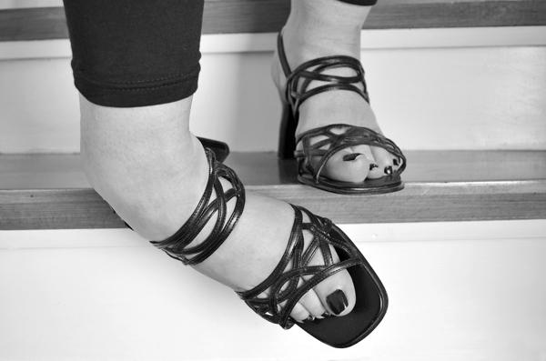 Растяжение связок голеностопного сустава на каблуках