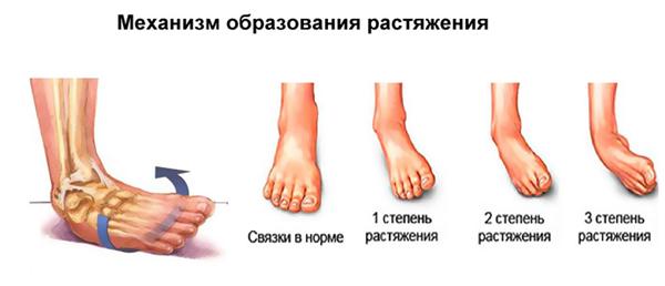 Изображение - Растяжение голеностопного сустава гипс rastyazhenie-svyazok-golenostopnogo-sustava-simptomy